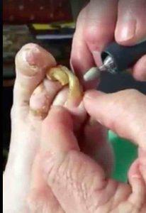 fungal-toenail-infection-gross